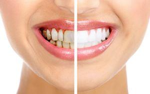 Placa dentara de revizuire