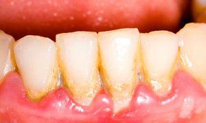 Tablă galbenă pe cauzele dinților