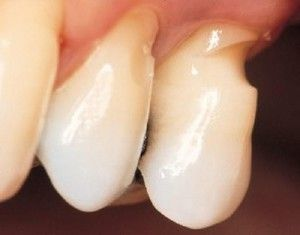 Cuneoid defectul dintelui