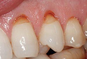 Ceea ce este periculos este un defect în formă de pană a dinților