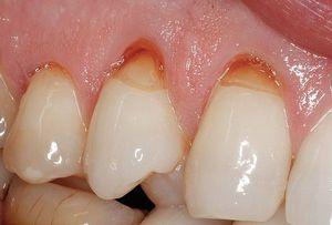 Cauzele unei dentiții sferoide