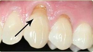 Simptomele dentiției sferoidale la pacienți