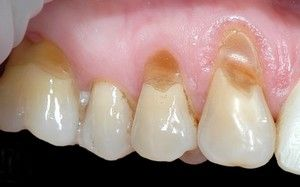 Tratamentul defectelor dentare în formă de pană la adulți