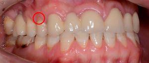 Complicații ale defectelor dentare în formă de pană la pacienți