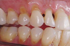 Consecințele unui defect dentar în formă de pană la pacienți