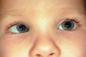 Va exista un strabism în copil