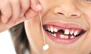 Pierderea dinților copilului la copii