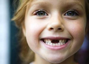 Schimbarea dinților bebelușilor la copii