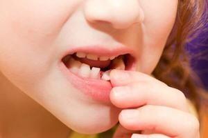 Slăbiți dintele singur