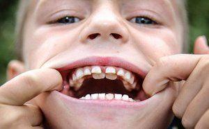 Dinții de rechin