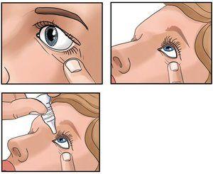 Cum să insuflați picături oftalmice