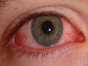 Metode de tratare a conjunctivitei oculare