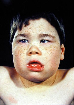 Patologia feței cu cretinismul