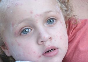 Tratamentul herpesului la copii