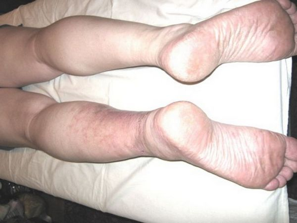 Herpesul pe picior