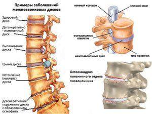 Osteocondroza și tratamentul acesteia