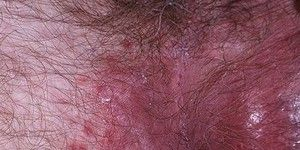 Tratamentul epidermofitozei inghinale