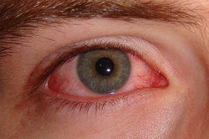 Conjunctivită la copii: simptome
