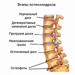 Ce medicamente sunt tratate pentru osteochondroză