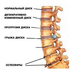 Etapele osteocondrozei