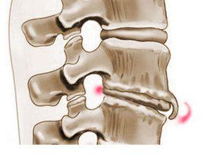 Cauzele apariției coloanei vertebrale pe coloana vertebrală