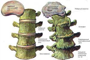 Ce sunt osteofitele?