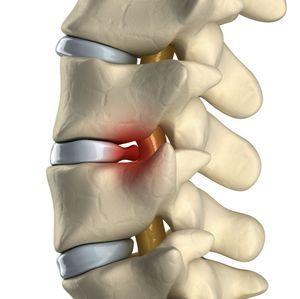 Tratamentul osteofiturilor