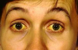 Sindromul Gilbert nu este o boală hepatică ereditară letală.