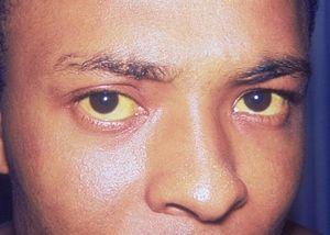 Sindromul Gilbert este tratat cu dieta obișnuită și medicamente în timpul perioadei de exacerbări.