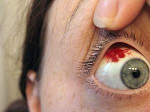 Hemoragia în ochi - diagnostic