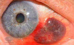 Diferite leziuni oculare - grade și tratament