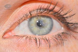 Leziunile superficiale ale ochilor sunt tratate acasă