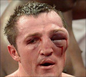 Tipuri de răni oculare și metode de a le ajuta