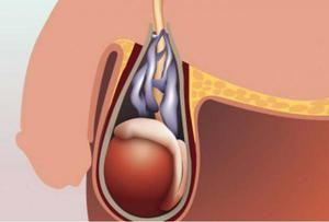 Efectuarea operației pe varicocel