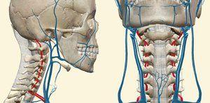 VBN în fundalul osteocondrozei cervicale