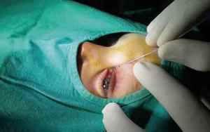 Operarea pe ochi la un dacryochist - efetivnost