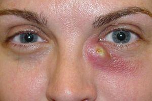 Dacryocystitis - ce este?
