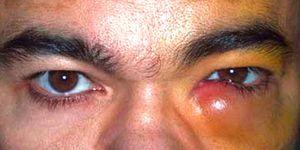 Dacrycystitis al ductului lacrimal și alte boli oculare