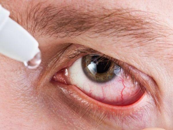 Ce picături pentru ochi sunt potrivite pentru inflamarea canalului lacrimal