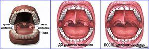 Înainte și după amigdalectomie