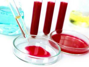 Ce boli ajută la diagnosticarea unui test de sânge pentru biochimie