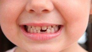 Cât de mult pot fi dinții de lapte