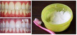 Utilizarea de sodă pentru curățarea dinților
