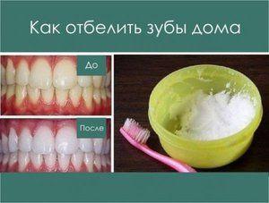 Cum se separă dinții