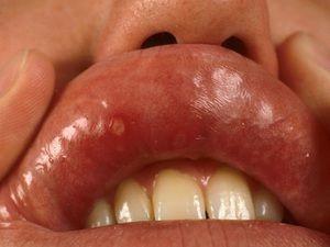 Descrierea bolii stomatitei