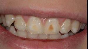 Leziunile non-carioase ale dinților înainte de erupție