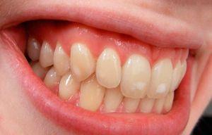 Hiperplazia dinților
