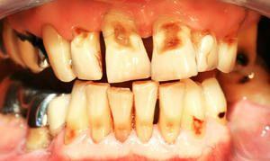 Eroziunea smalțului dinților