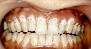 Hyperesthesia dinților