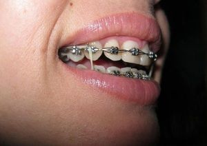 Descrierea metodelor de corectare a mușcăturii incorecte a dinților